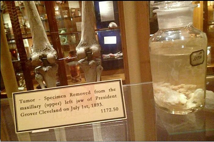 President Cleveland's Jaw Tumor at Mutter Museum